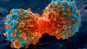 lung-cancer-cell-dividing-article.__v400248237